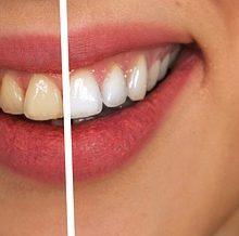 Truques para branquear os dentes