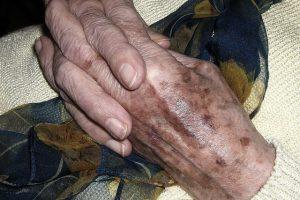 manchas das mãos