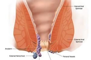 como curar hemorroidas