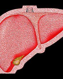 Dieta para esteatose hepática