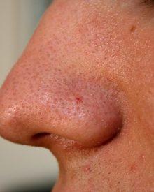 Corpo estranho no nariz