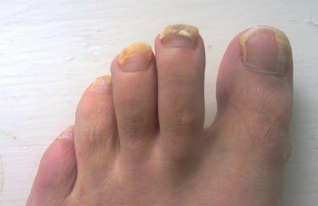 fungos nos pés