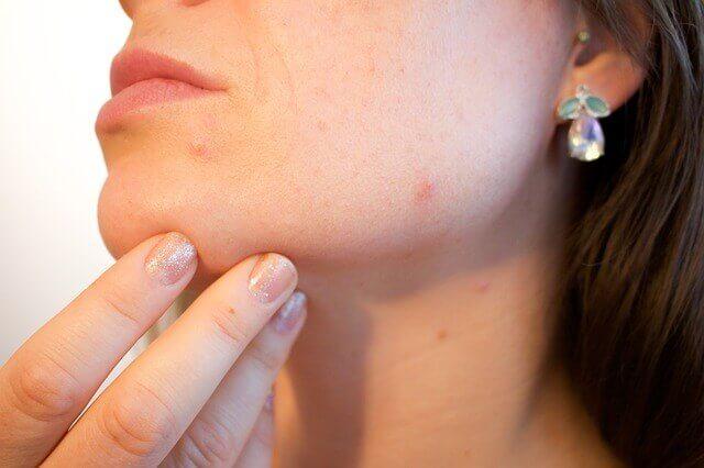Remédio para a acne adulta