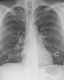 Cancro dos Pulmões