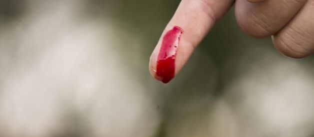 Remédios naturais para tratar as feridas