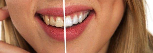 como clarear os dentes