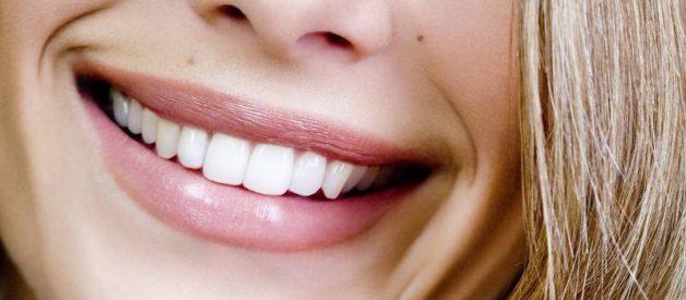 escurecer os dentes